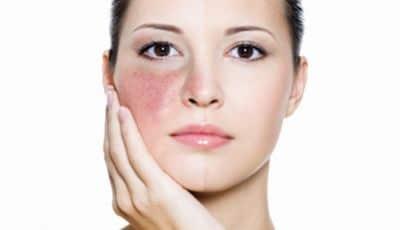 Clinic 33 Skin Treatment Brighton Hove
