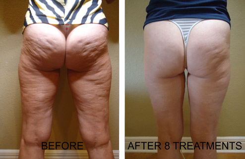 cellulite treatments hove & brighton clinic