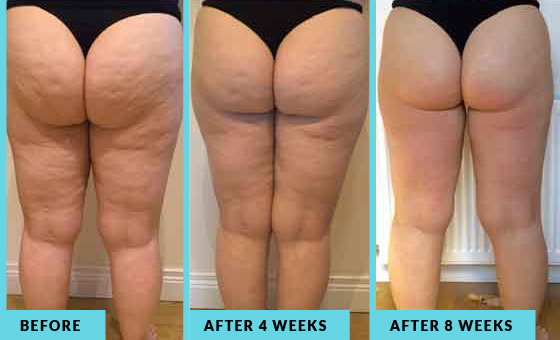 Lipofirm before, after 4 weeks and after 8 weeks
