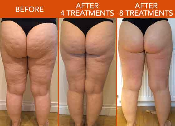 lipofirm before after