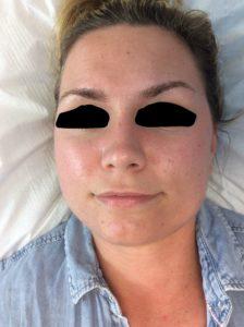 Dermalux treatment after
