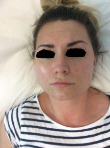 Dermalux treatment before