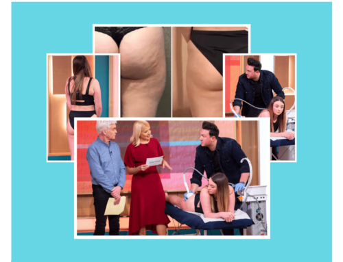 Holly and Phil Left Amazed by Cellulite Treatment: Lipofirm